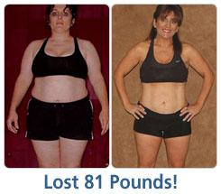 Carolynn Lost 81 lbs!